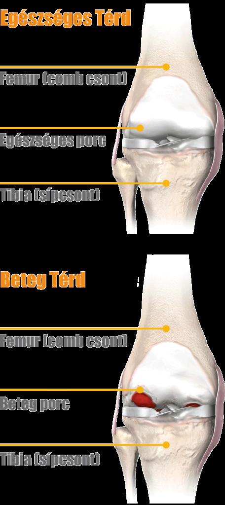 artrózis oka és kezelése