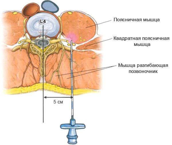 a vállízület artrózisának kezelése 3 fokkal