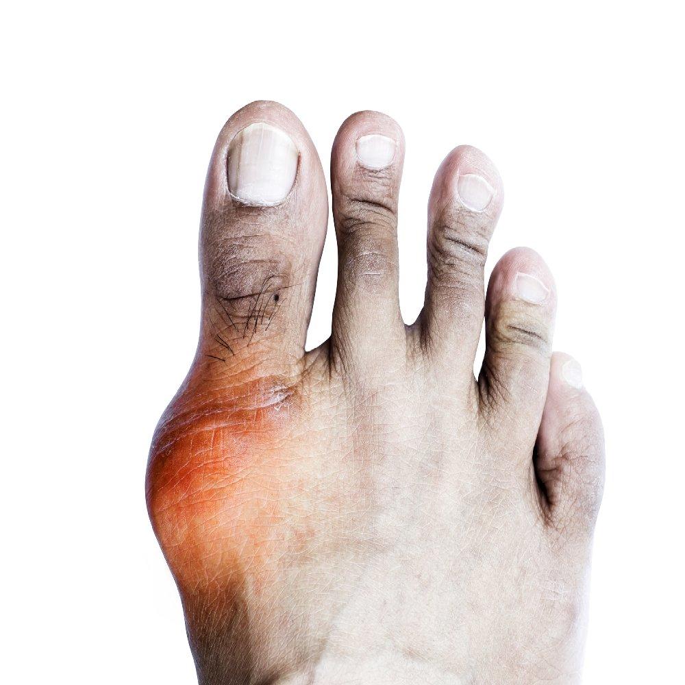az első fokú artritisz kezelése