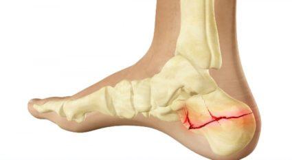 a könyökízület sérülései esetén kötszert kell viselni csípőfájdalom és sclerosis multiplex