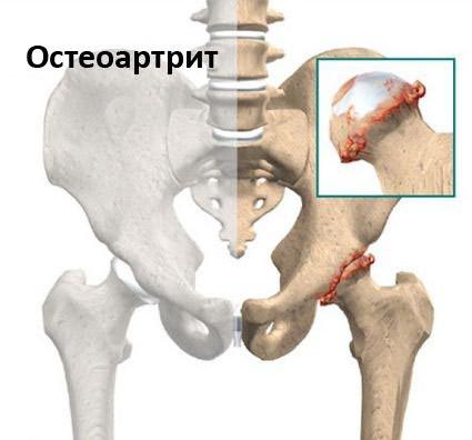 ízületi fájdalom 35 év alatt nem szteroid gyógyszerek ízületi fájdalmakra