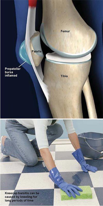 phalangealis ízületi fájdalom