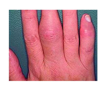 hogyan lehet kezelni a gyulladt ujjízületet