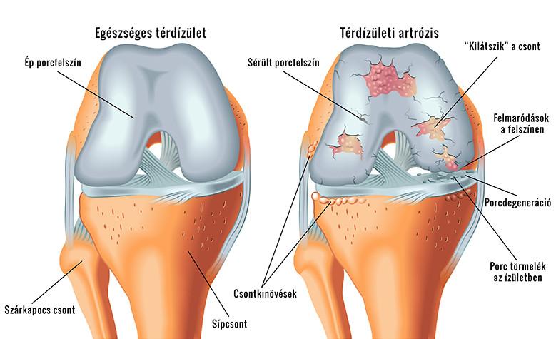 térdízület betegség ízületi gyulladás