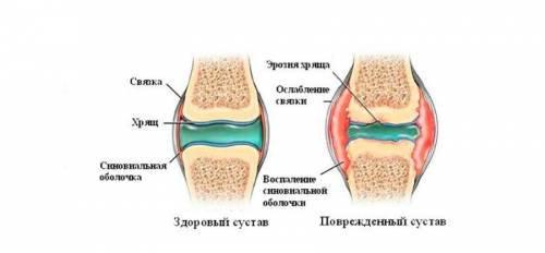 fájdalom az első ujjak ízületeiben könyökízületek gyulladása