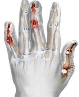 a vállízület psoriasis ízületi gyulladása mágnesterápia a csípőízület fájdalmához