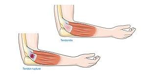 boka-chondromatosis kezelés