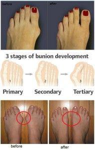 Megéri-e az aranyos cipő? Bunion tünetei és okai + 5 természetes kezelés