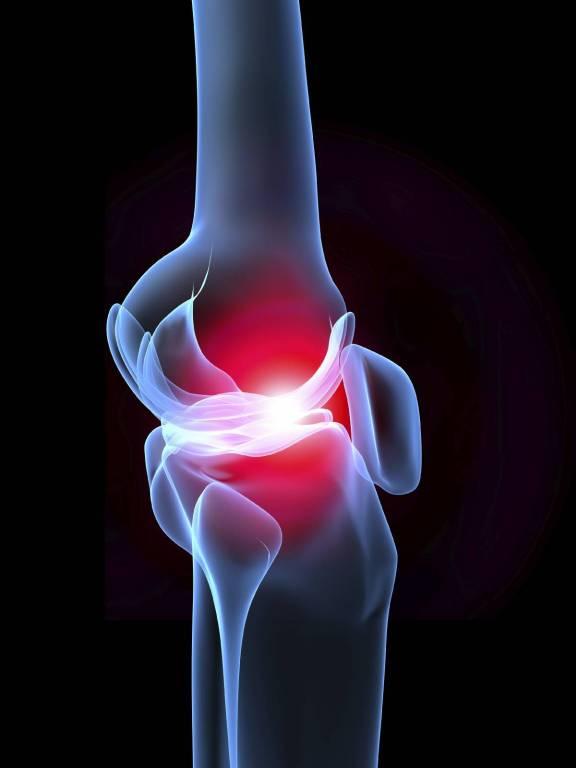 kenőcs hatékony ízületi fájdalmak esetén térdízület-kanyar