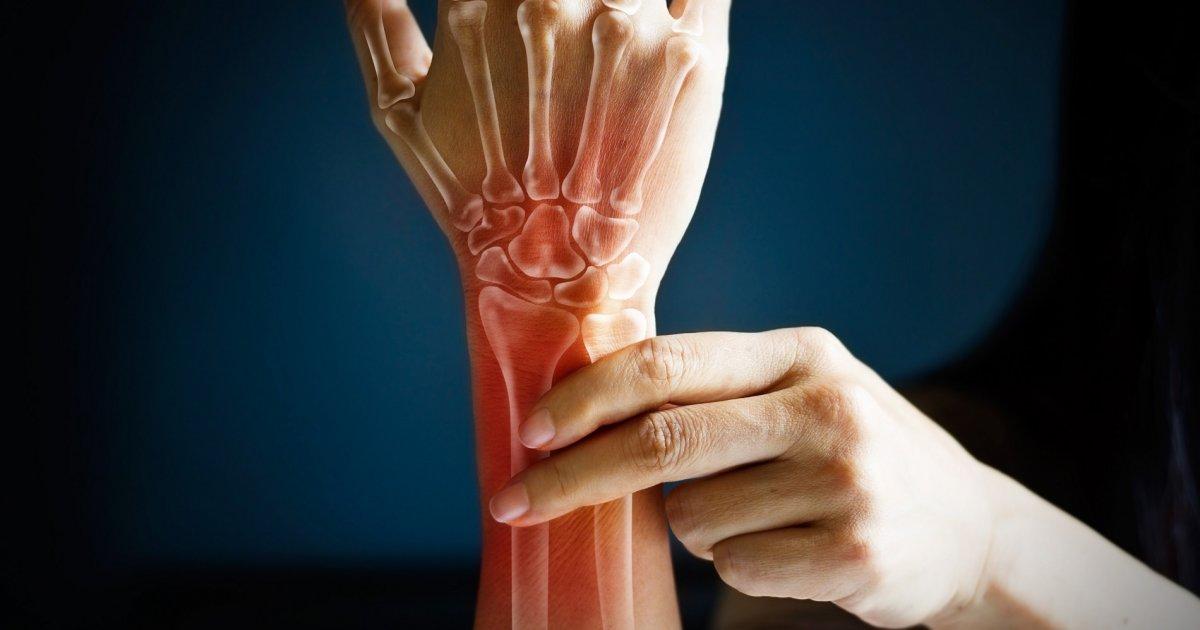 az artrózis járóbeteg-kezelése szódabikarbóna izületi gyulladásra