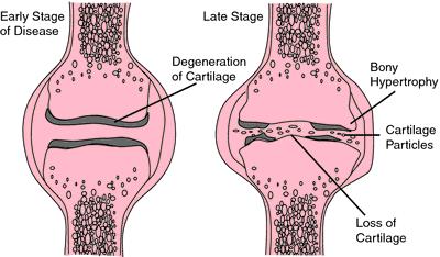 Best Nyelés/lágy szájpad/ images in | Anatómia, Artikulációs terápia, Babaláb