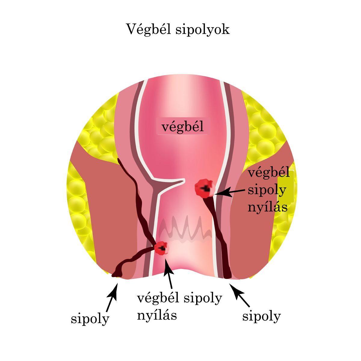 coccyx ízületi tünetek és kezelés