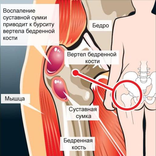 coxitis csípőbetegség