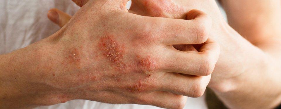 A napszúrás tünetei, megelőzése és kezelése