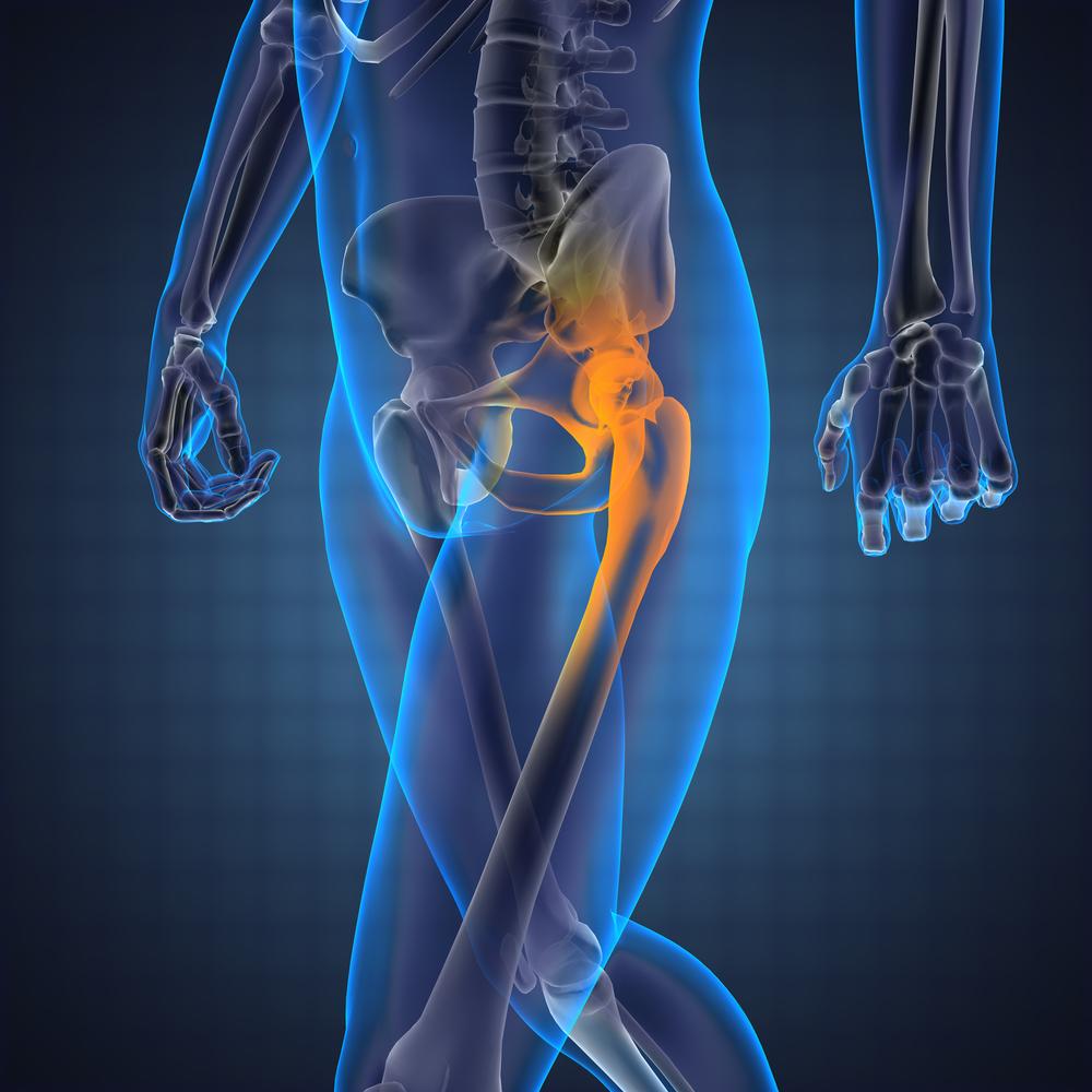a térdízületek súlyos fájdalmakat okoz
