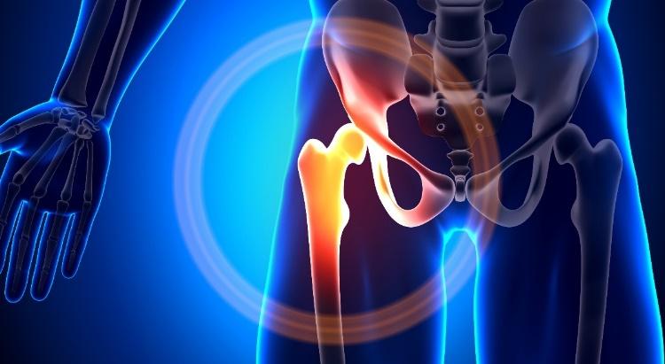csípőízületek fájdalom torna
