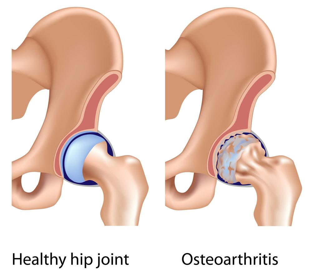 arthritis arthritis clinic térdízületi ízületi gyulladás második fokú