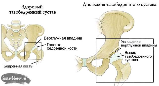 ízületi fájdalom a dyuralan beadása után pszichoszomatikus ízületi fájdalom