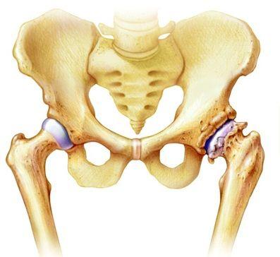 bal térdízület kezelése súlyos ízületi fájdalmak kezelése