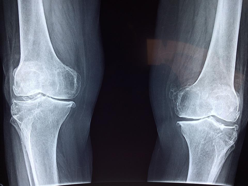 éhezési kezelés artrózis esetén
