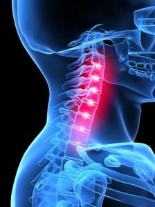készítmények cervicothoracicus osteochondrosis kezelésére