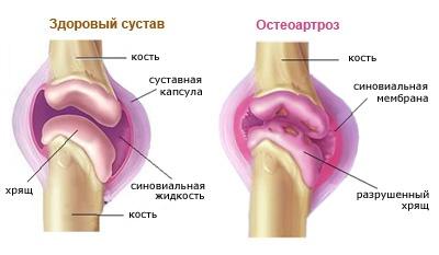 deformáló artrózis hogyan lehet kezelni