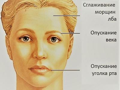 Cystitis kezelés - Tünetek