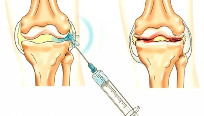 doa 1 fokos térdízület-kezelés kenőcs tabletták ízületek