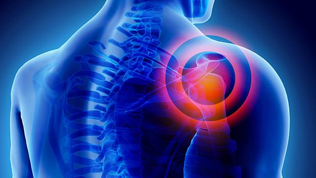 ízületi fájdalom és feszültség gerinc sérv a térdízületekben