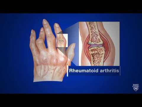 Rheumatology - Swiss Clinic