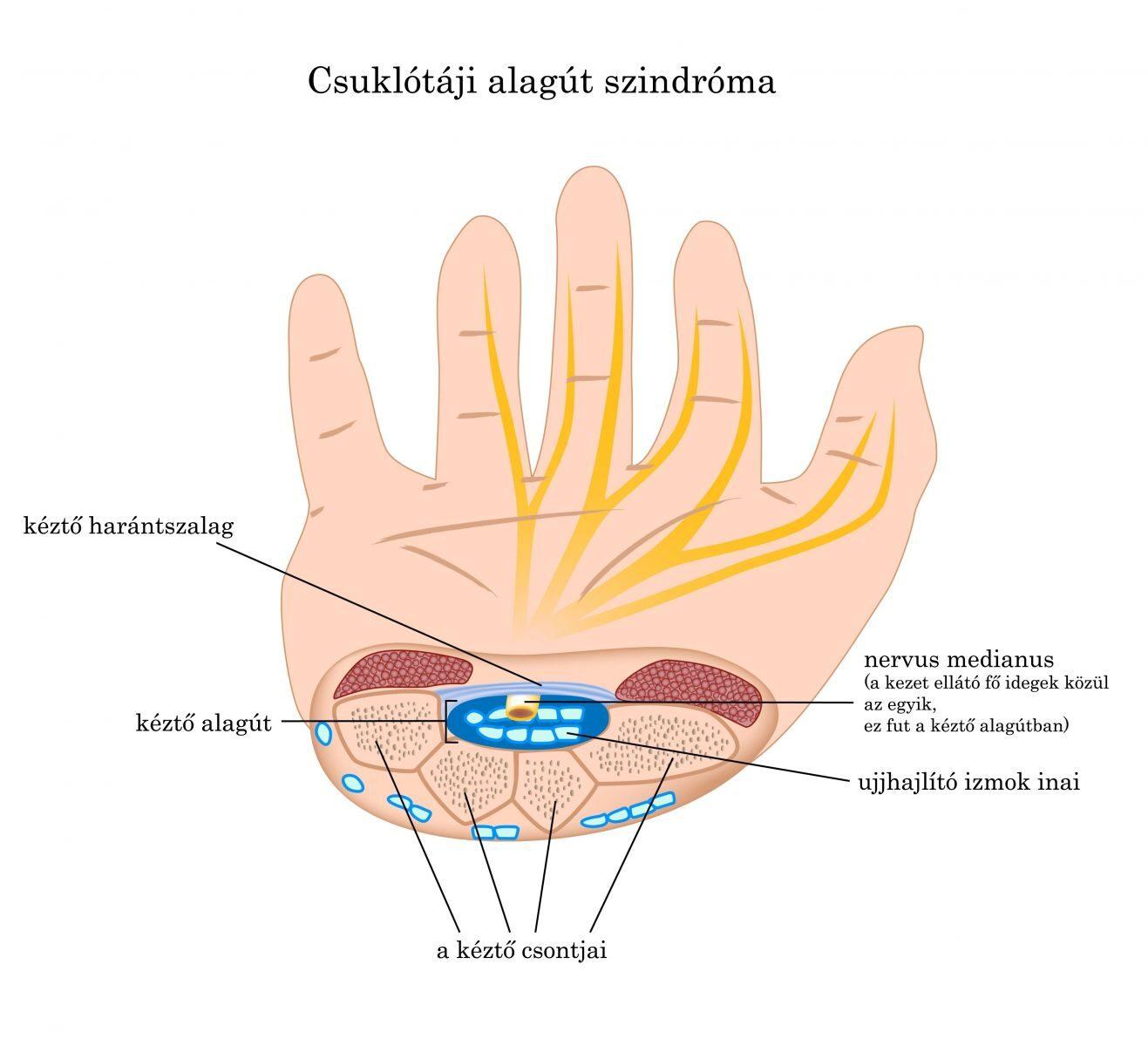 gyógyszer ízületek chondrolone bokaízület kezelése artrózis és ízületi gyulladás esetén