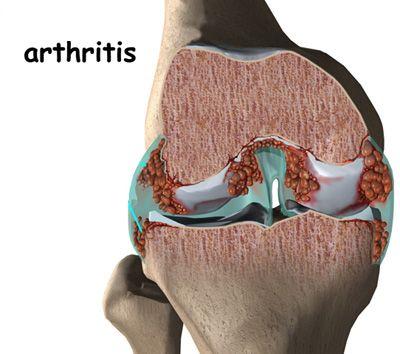 rheumatoid arthritis lelki háttere