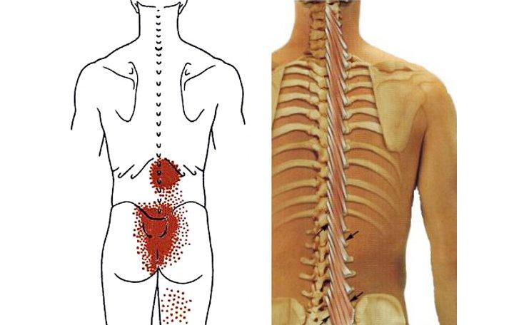 hogyan lehet kiküszöbölni a gerinc és az ízületek fájdalmát artrózis és ízületi gyulladás ultrahang kezelése