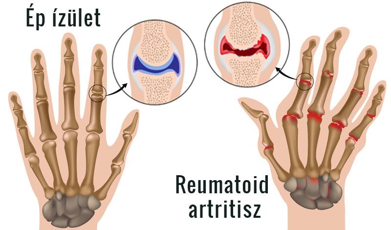 bőrbetegségek a kéz ízületein