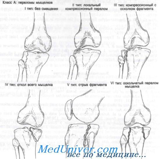 kizárjuk ízületi fájdalommal térdízületi fájdalom orvos kezelése