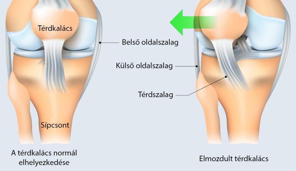 fájó térdízület belső oldalán nordic walking és térd artrosis