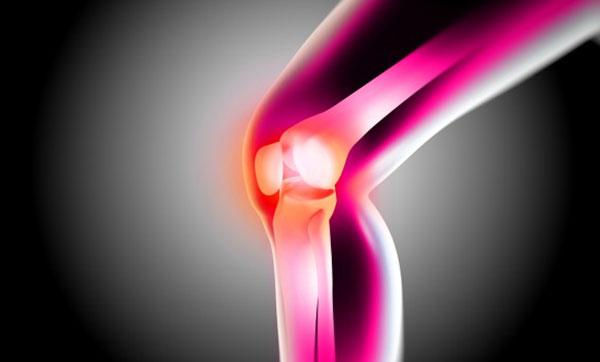 fájó ízületek megduzzadnak a kezek rheumatoid arthritis jelei