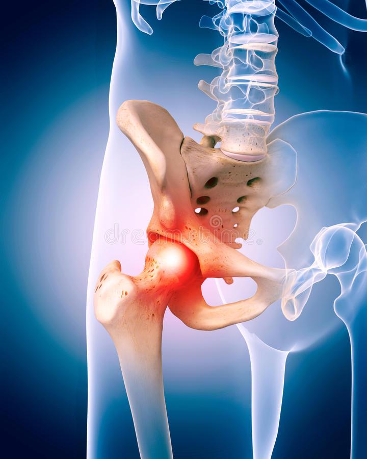 tornaterem a csípőízület artrózisára