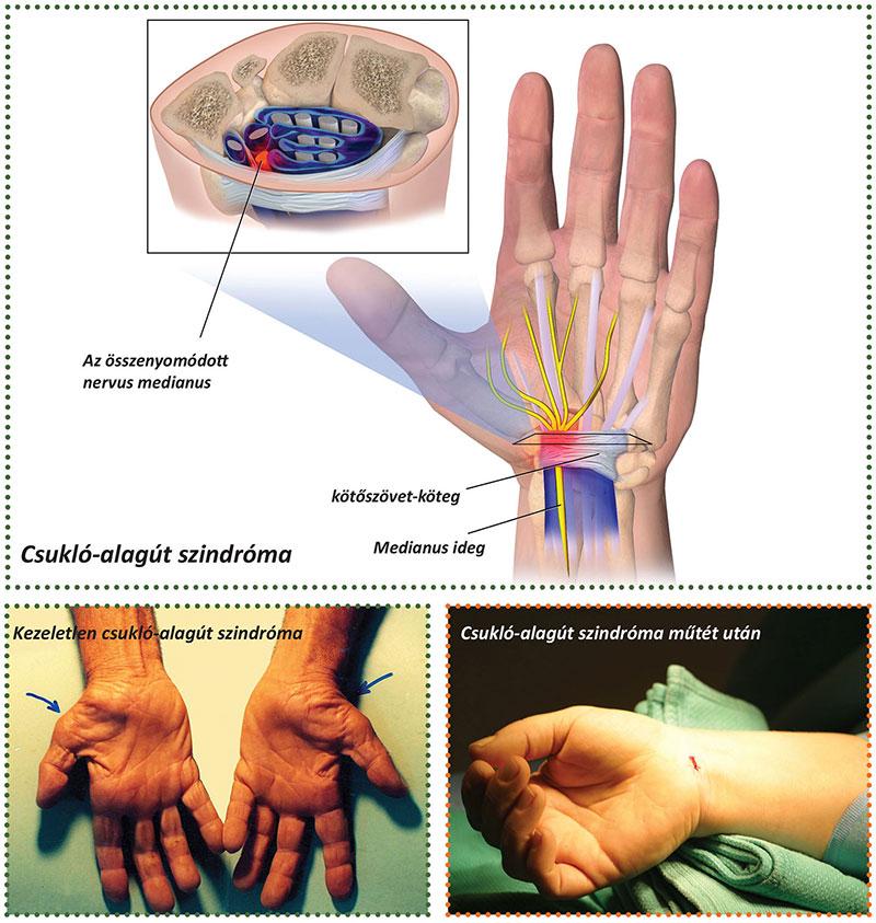 artritisz kezelése kenőcsökkel csípőízület és annak betegségei