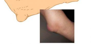 Betegségek, melyek könyökfájdalmat okozhatnak - fájdalomportáfelsomatraiskola.hu