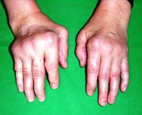Ízületi gyulladásom van? - a reumatoid artritiszről | felsomatraiskola.hu