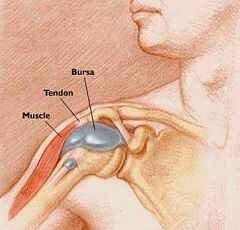 hogyan kell kezelni a csípő-bursitist 3. fokú gonarthrosis kezelés
