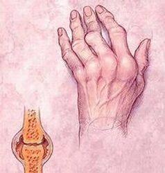 hogyan kezelhető a rheumatoid arthritis arthrosis