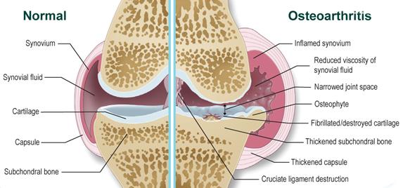 artrózis kezelése naftalánnal izom- és ízületi fájdalomkrém
