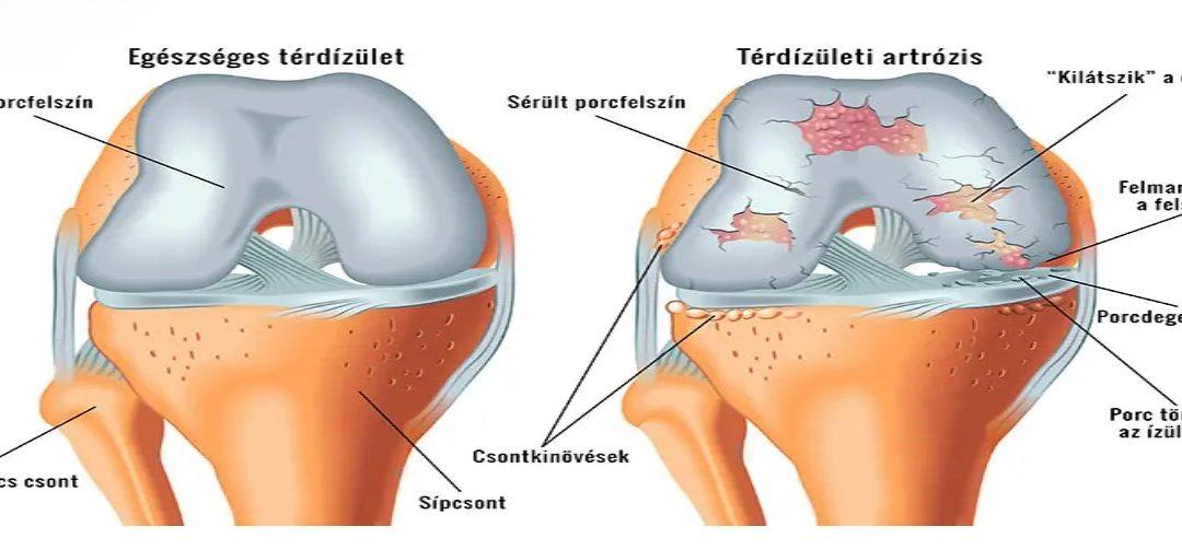 hogyan lehet eltávolítani a fájdalmat a térdről vállfájdalom, oszteokondrozis