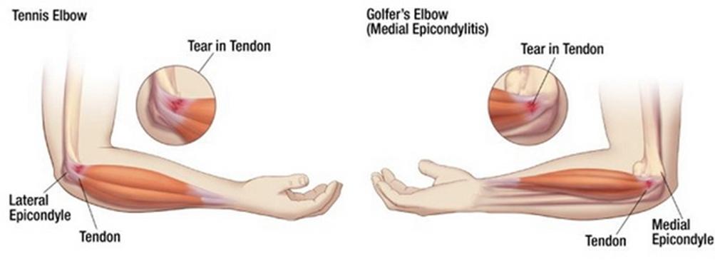 váll izületi gyulladás ii. fokú bokaízületi kezelés