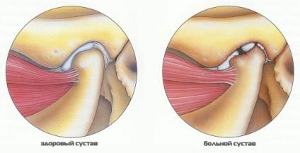 csípőízület artrózisa 2 fokos kezelési fórum kenőcs a kötőelemek és az izmok számára