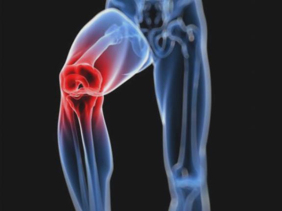 enyhe ízületi fájdalmak csípőízület artrózisának kezelése 2 fokos fórumon