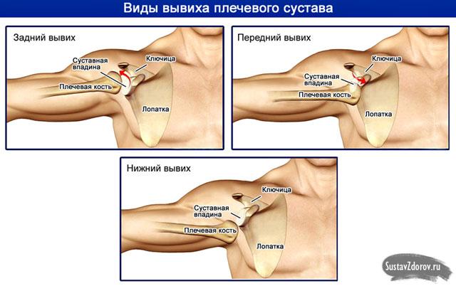 a vállízület kezelésének sárga szalagjainak hipertrófiája ízületi fájdalomgélek