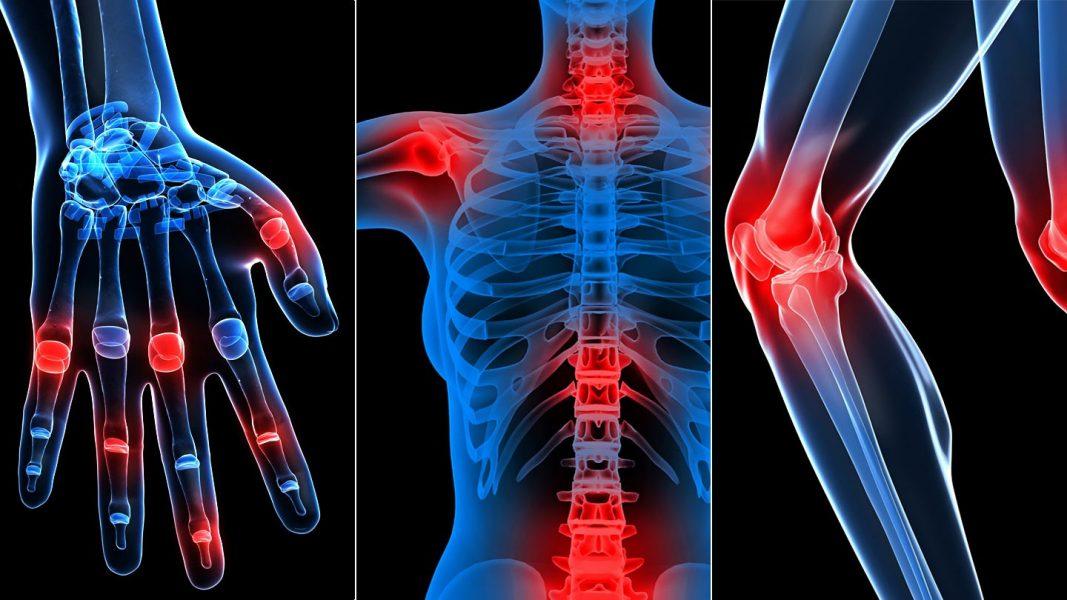 életkorral összefüggő ízületi fájdalom ízületi fájdalom teljes test fórum